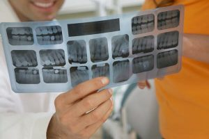 Services of a General Dentist in SJ, Utah