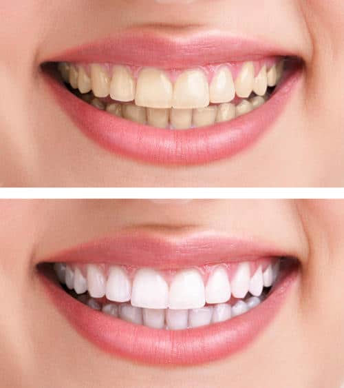 teeth whitening utah